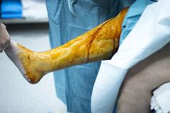 chirurgie reconstructive membres inferieurs