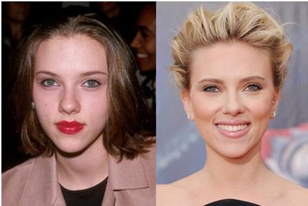 Scarlett Johanson et chirurgie esthétique