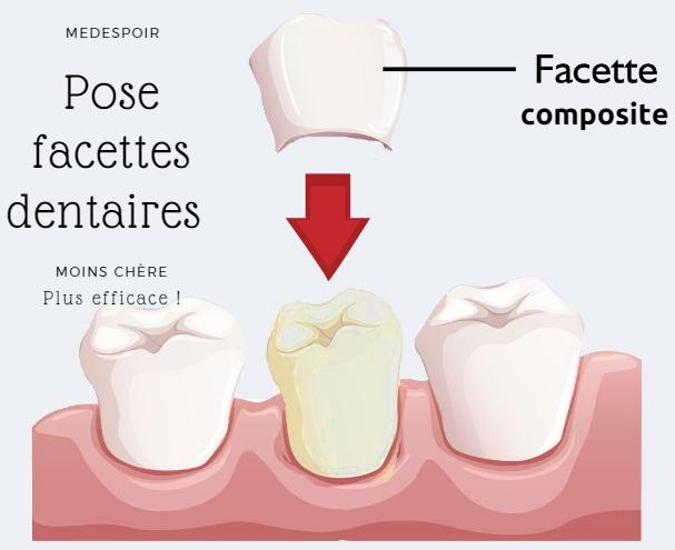 facettes dentaires composites Tunisie