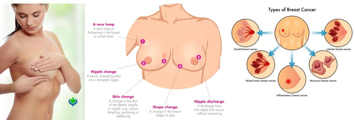 types cancer seins
