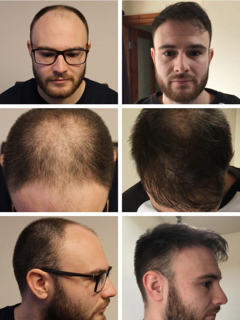 Photos avant et après traitement cheveux