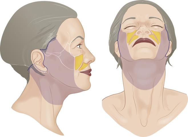 lifting cervico facial par chirurgien maxillo-facial Tunisien