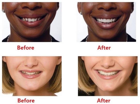 photos avant et après dentisterie esthetique