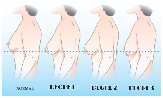 degré ptose mammaire
