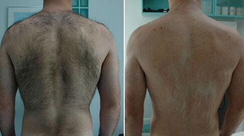 Laser dépilatoire dos homme avant et après