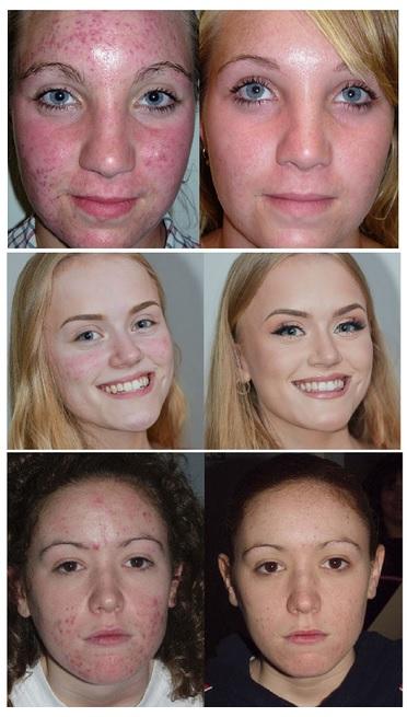 peeling visage photos avant après