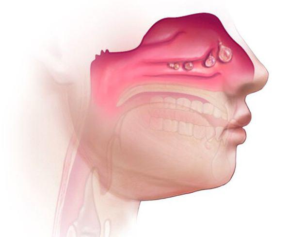 septoplastie rhinopathie hyper
