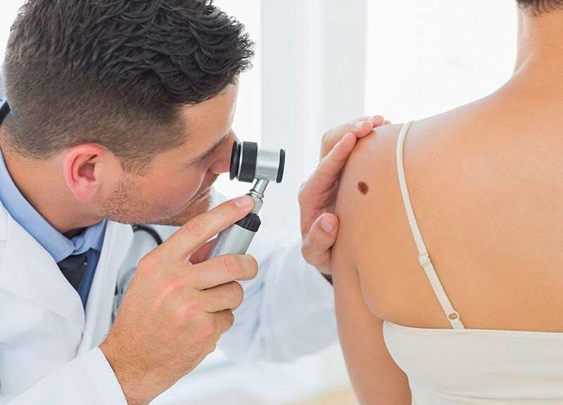 traitement cancer peau