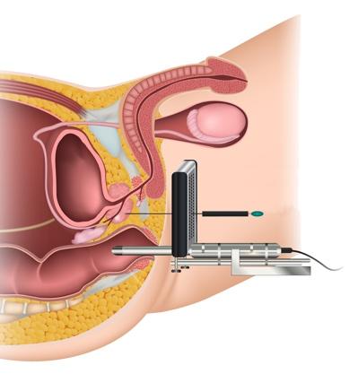 Biopsie prostate