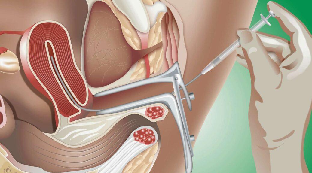 étapes insémination artificielle