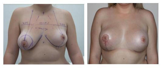traiter asymétrie seins