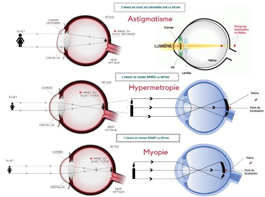 a976fadfff634 Ce traitement laser concerne toute personne qui souffre d un problème visuel  de myopie