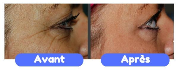 Botox Tunisie avant apres