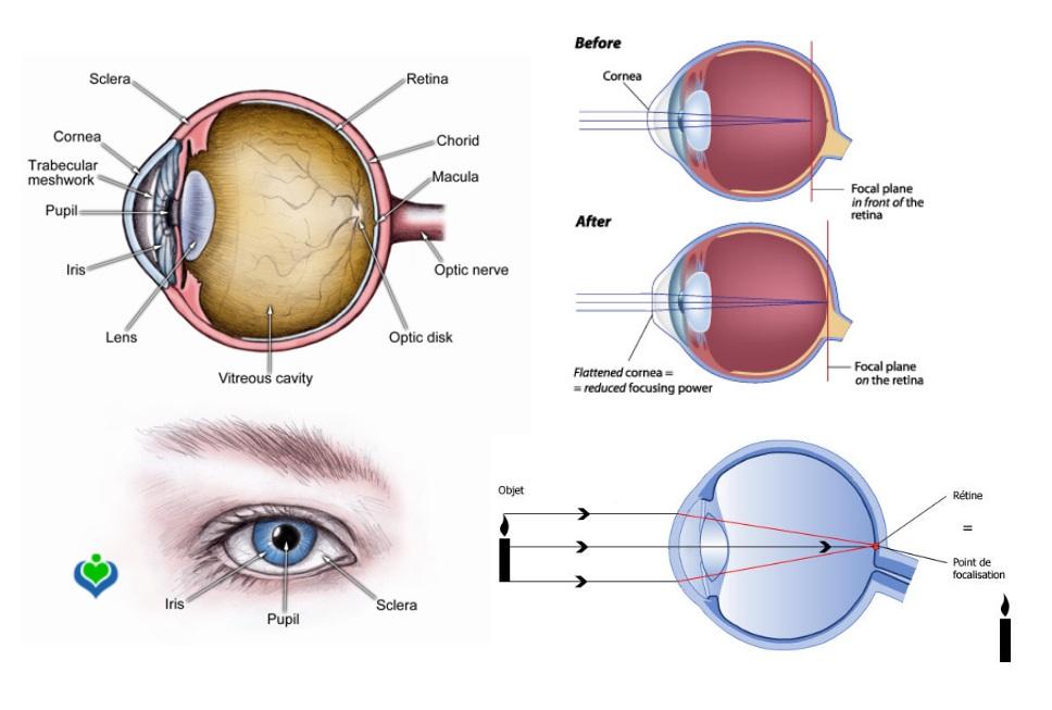 a1ddd2962cede Lasik Tunisie   traitement laser myopie