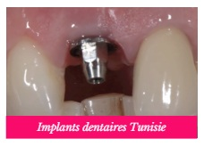 implants dentaires Tunisie