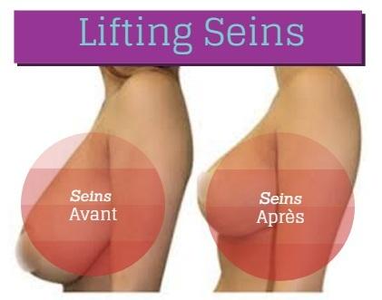Les exercices augmentant la poitrine en 2 mois