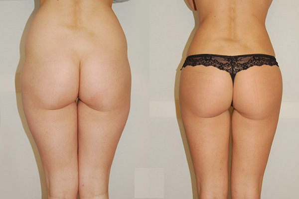 implants augmentation fesses tunisie