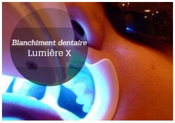 lumiere x blanchiment dentaire tunisie